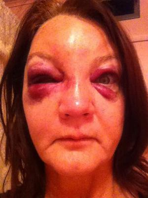Domestic Violence Photo 1: He asked me to say it was a horse riding accident